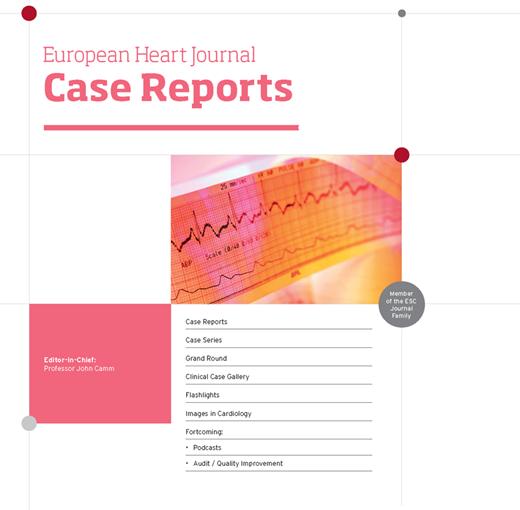 村田理沙子先生の論文がEHJ Case Reportsに掲載されました